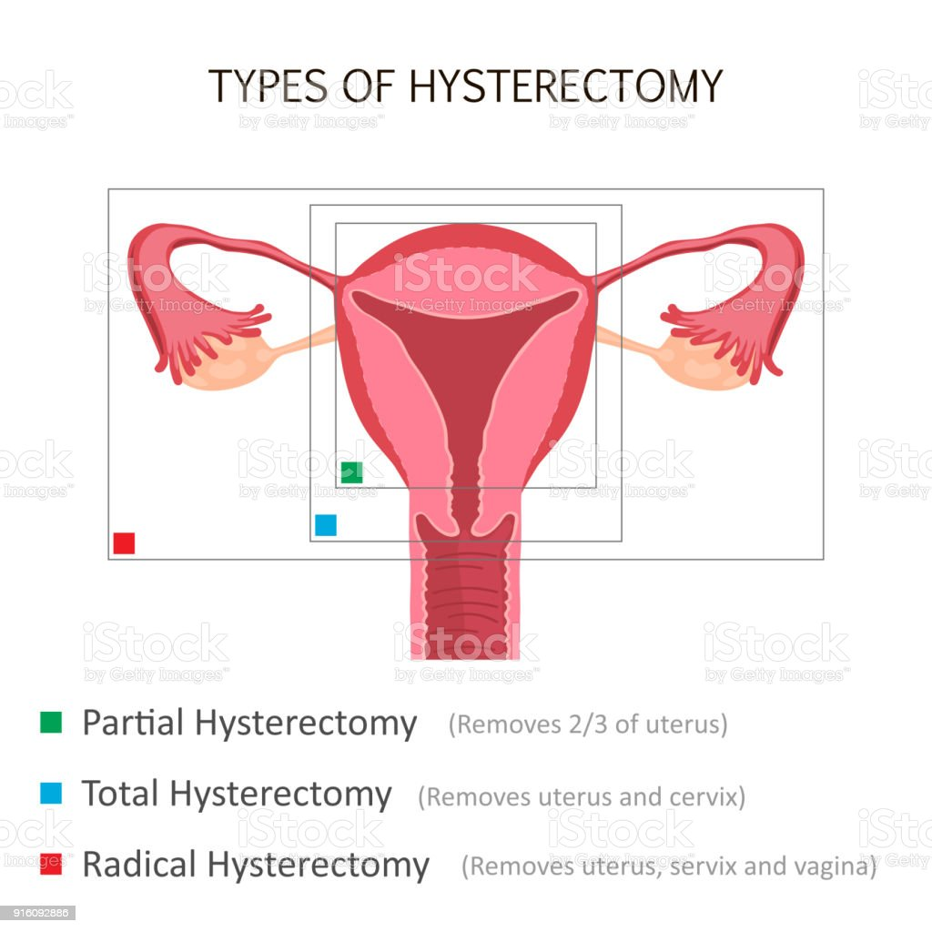 Types Of Hysterectomy Stock Vector Art & More Images of Anatomy ...