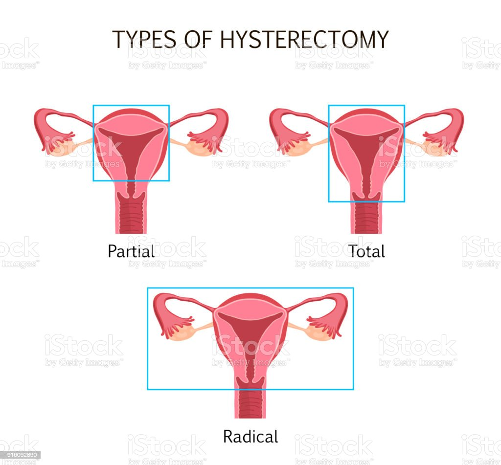Types Of Hysterectomy Stock Vector Art More Images Of Anatomy