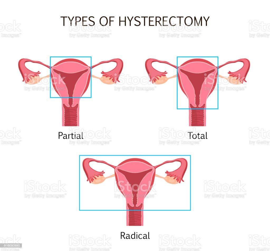 Arten Der Hysterektomie Stock Vektor Art und mehr Bilder von ...