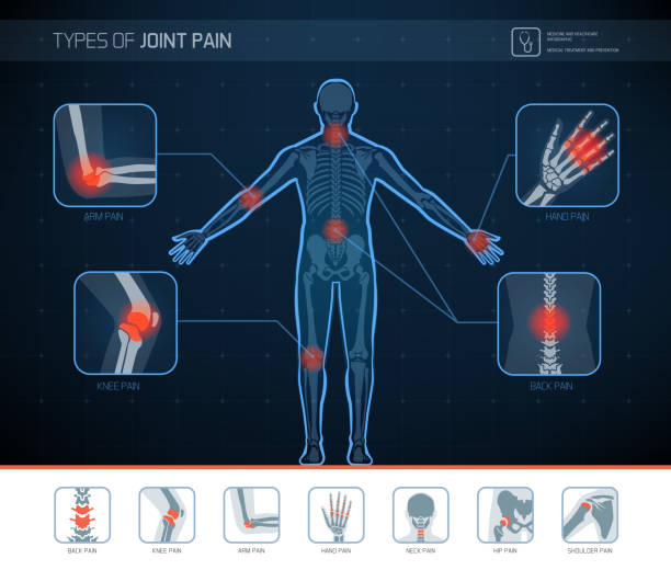 Types of joint pain infographic Types of joint pain medical infographic with icons medical x ray stock illustrations