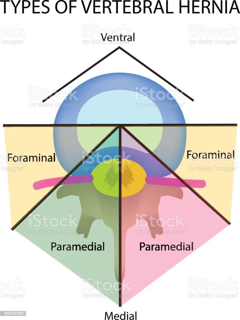 Ilustración de Tipos De Ubicación De La Hernia Intervertebral ...
