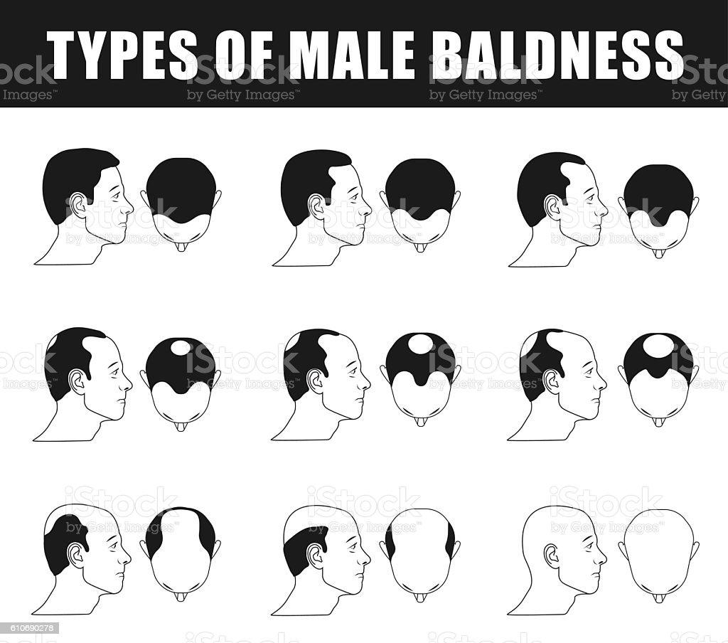 types of male baldness vector art illustration