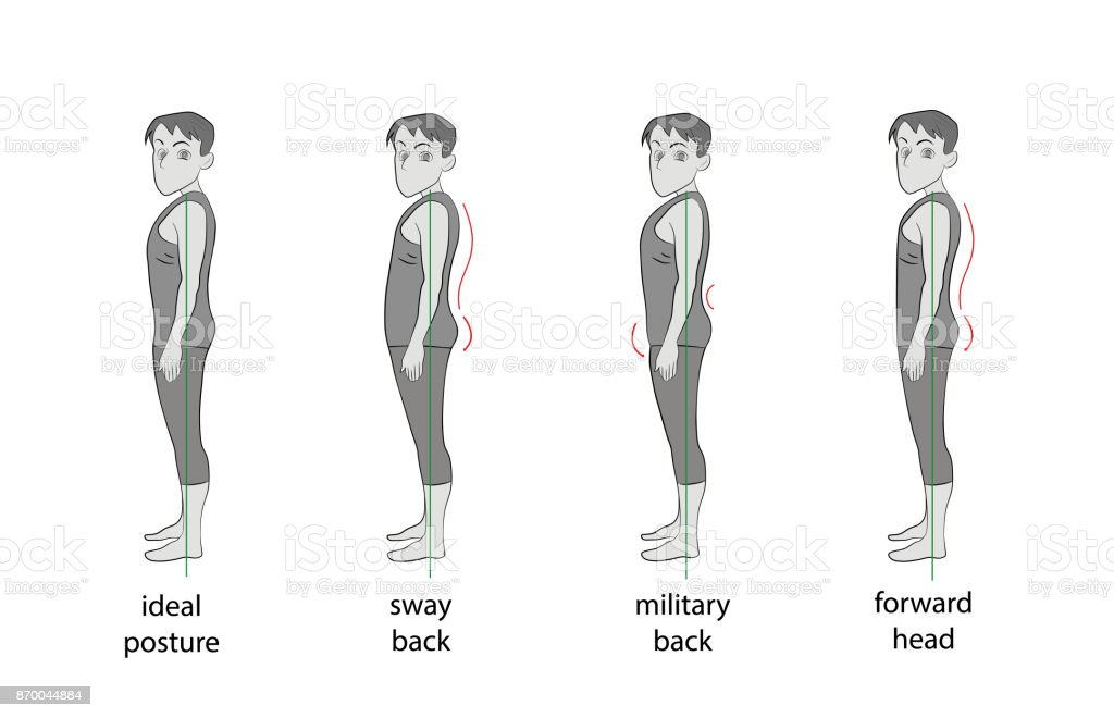 Types Of Posture In Men Vector Illustration Stock Vector Art More