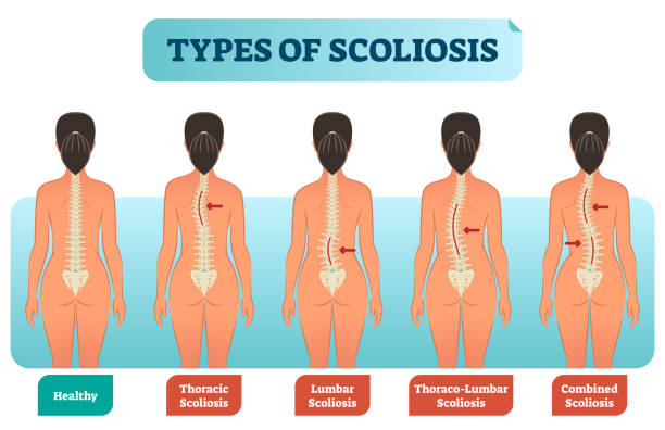 Types of scoliosis medical anatomical vector illustration diagram with spine curvatures. Types of scoliosis medical anatomical vector illustration diagram with spine curvatures compared with healthy back bone. Back view female with labels. medical diagrams stock illustrations