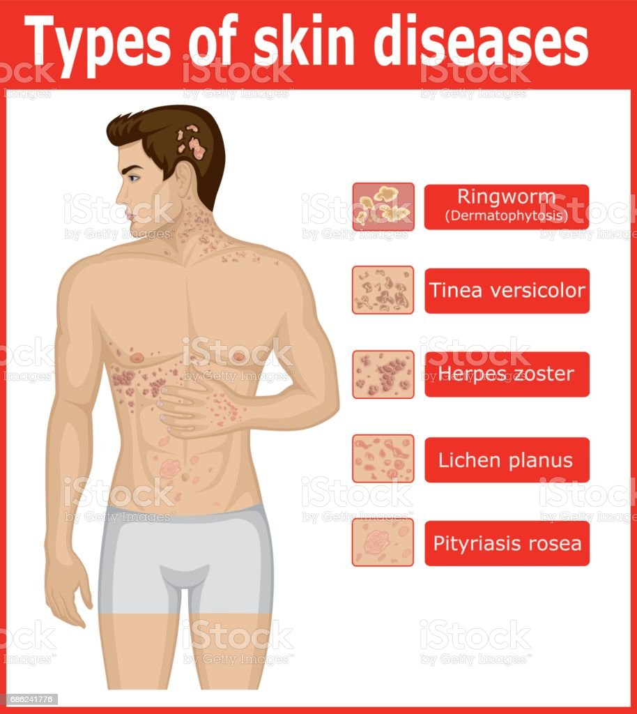 Types of skin diseases vector art illustration