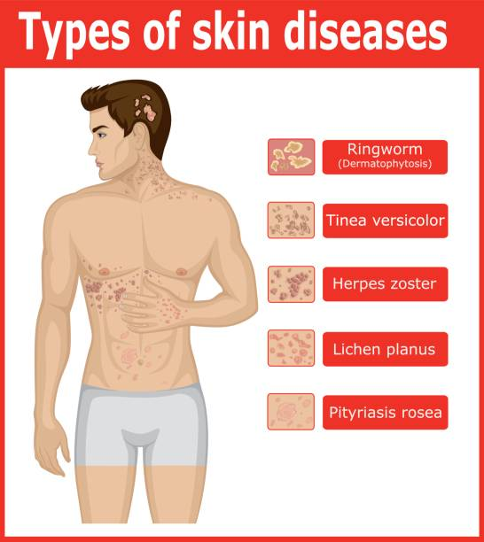 Types of skin diseases vector art illustration