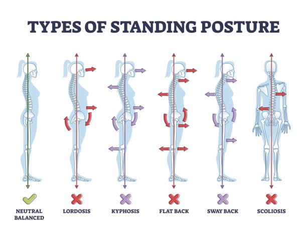 Types of standing postures and medical back pathology set outline diagram vector art illustration