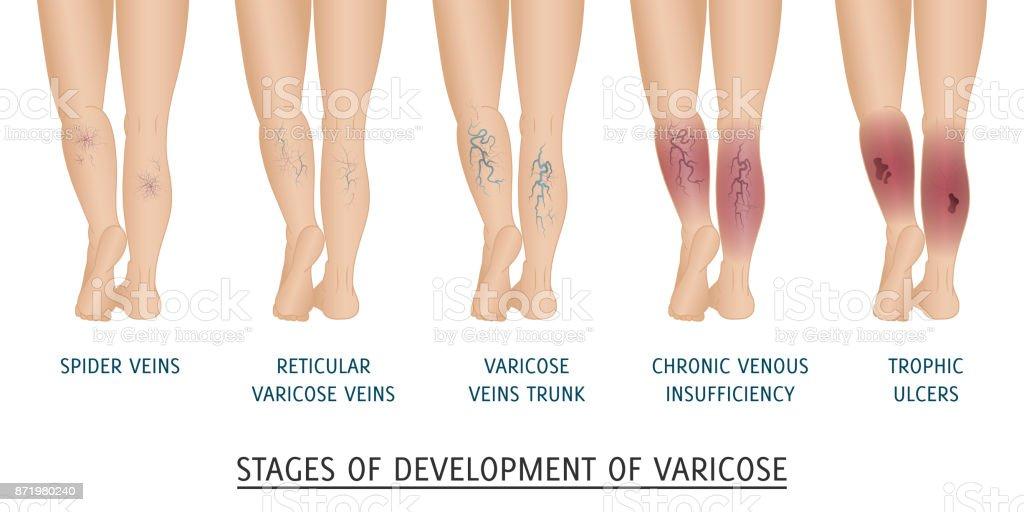 picioarele bolnavului vene