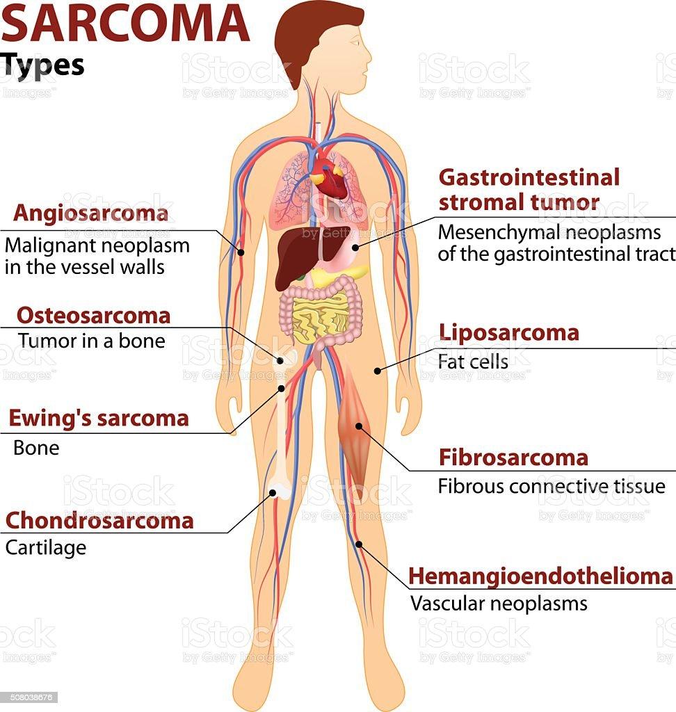 cancer sarcoma tipos intraductal papilloma tamoxifen