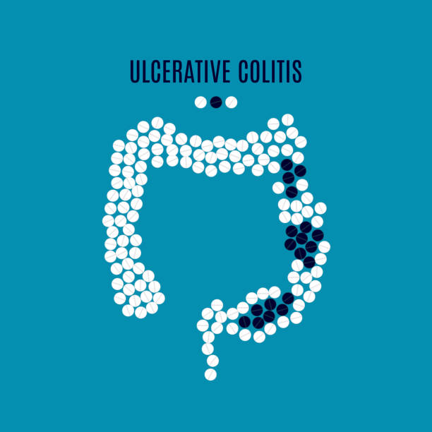 Ulcerative colitis pills poster vector art illustration