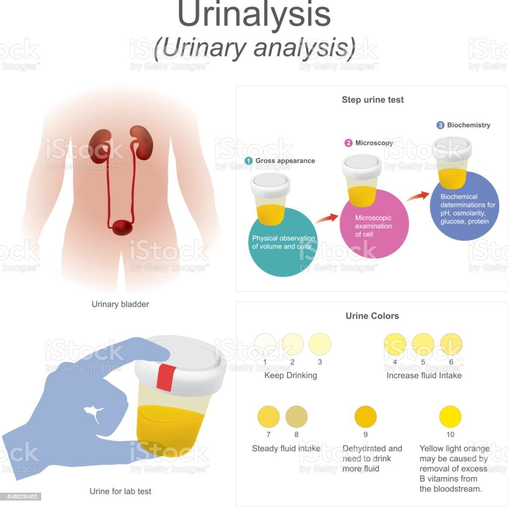 Urinalysis (urinary analysis) The lab test dips the strip into urine, chemical reactions change the colors. vector art illustration