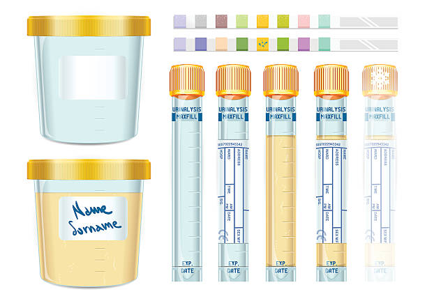 Urinalysis Yellow Cap Tubes Set, empty, filled, frozen and dipis Detailed illustration of a Urinalysis Yellow Cap Tubes Set, empty, filled, frozen and dipistick. This illustration is saved in EPS10 with color space in RGB. specimen holder stock illustrations