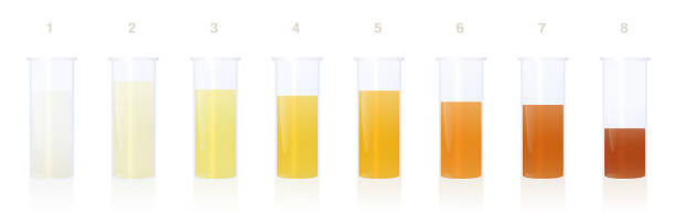 Urine samples in specimen cups with different colored urine - gradation from clear to yellow and orange and even darker. Indicator of the level of dehydration. Vector on white. vector art illustration