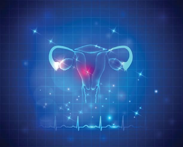 gebärmutter-gesundheitswesen - pcos stock-grafiken, -clipart, -cartoons und -symbole