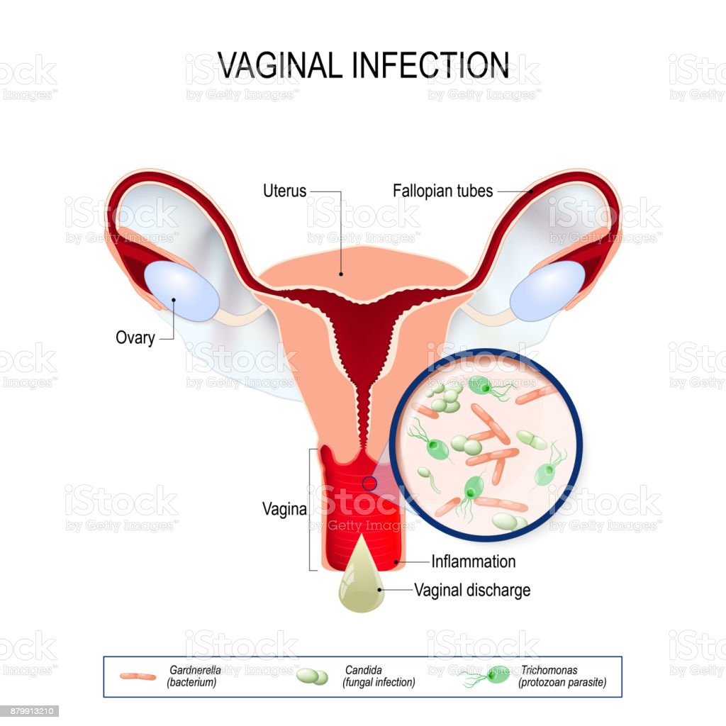Vaginitis is an inflammation of the vagina. vaginal infection and causative agents of vulvovaginitis vector art illustration