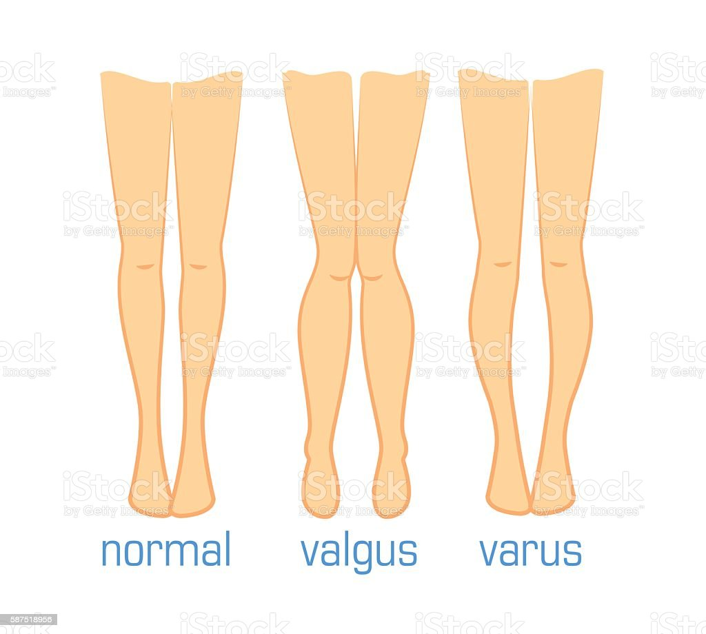 Valgus Varus And Normal Stock Vector Art & More Images of Anatomy ...