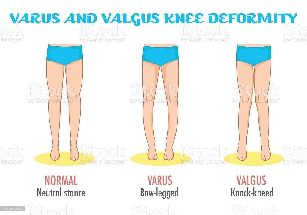 Valgusvarus Knee Legs Diseasedeformation Infographic Stock Vector ...