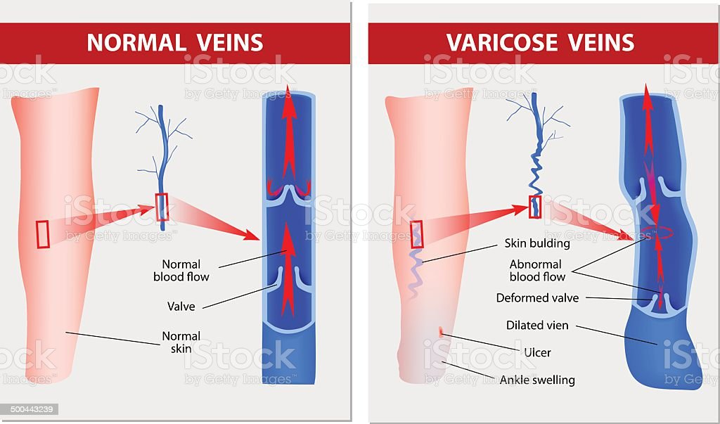 Varicose Veins Medical Illustration Stock Vector Art & More Images ...