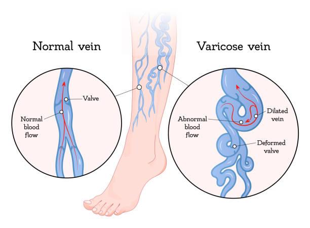 începător varicose clip art de perete venele varicoase în timpul menstruației