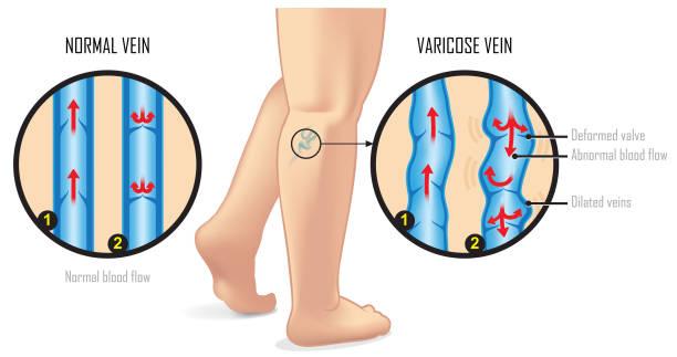 Tratament pentru vene varicoase clip art