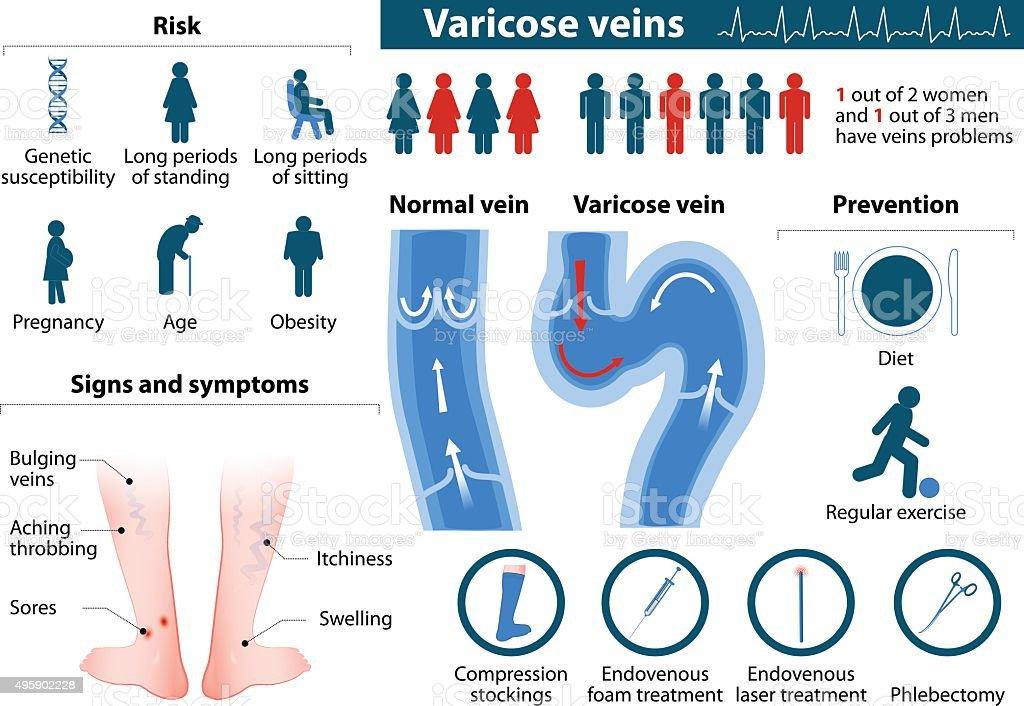 Varicose Veins vector art illustration