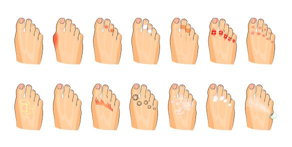 various foot damage