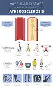 Vascular diseases. Atherosclerosis symptoms, treatment icon set. Medical infographic design. Vector illustration