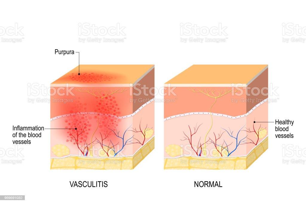 Vasculitis. Cross section of the human skin with vasculitis vector art illustration