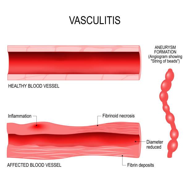 Vasculitis is damange of blood vessels by inflammation. vector art illustration