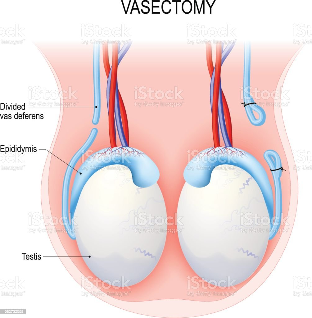 Vasectomy. Open-ended method and ligating (suturing). vector art illustration