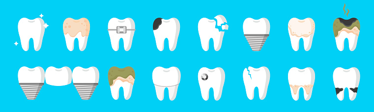 Vector cartoon set of teeth with different types of dental diseases: caries, tartar, plaque, dental bridge, braces etc