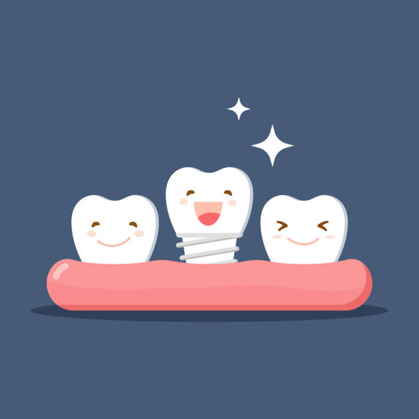 Vector cartoon white teeth happy with denture or Dental implant. Restoration in the oral cavity. Flat illustration on the theme of dentistry. Isolated vector. vector art illustration