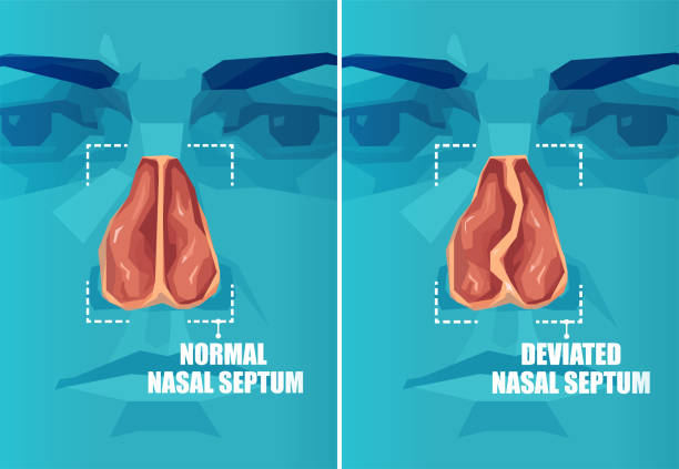 Vector cross section of human face with deviated and normal nasal septum Vector cross section of human face with deviated and normal nasal septum septum stock illustrations
