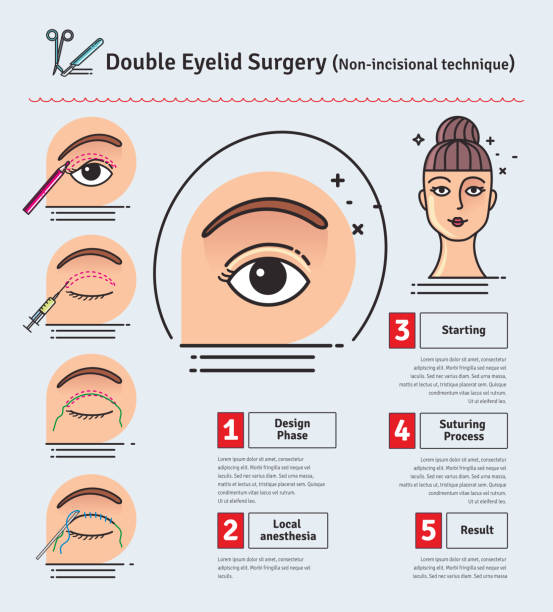 Best Eyelid Surgery Illustrations, Royalty-Free Vector Graphics