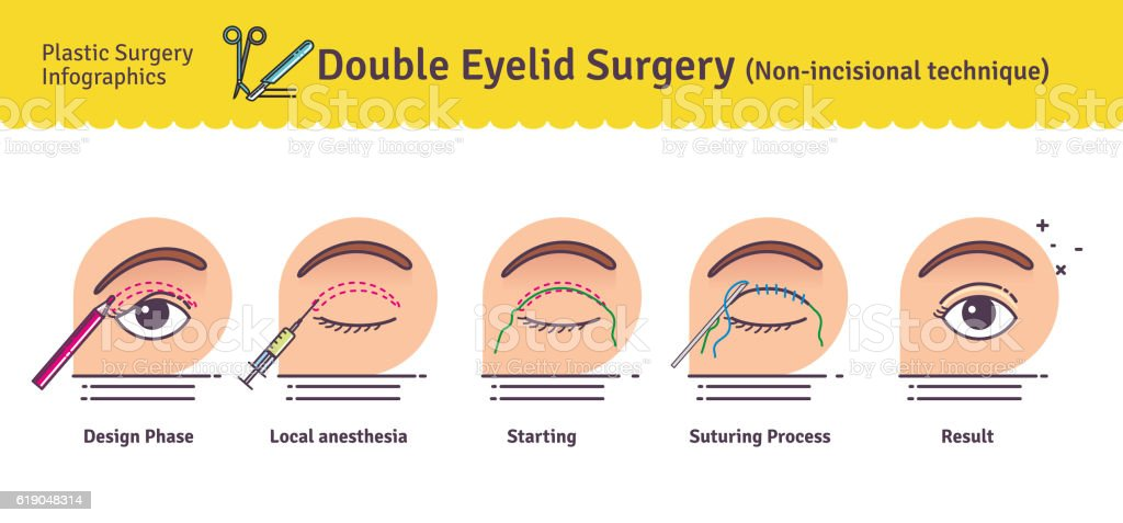 Vector Illustrated set with double eyelid surgery. Non-incisional technique vector art illustration
