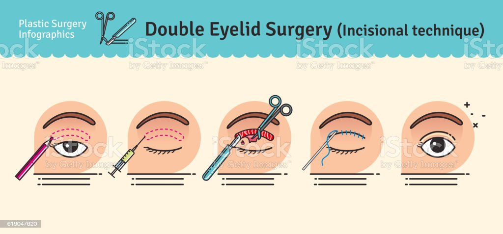 Vector Illustrated set with double eyelid surgery vector art illustration
