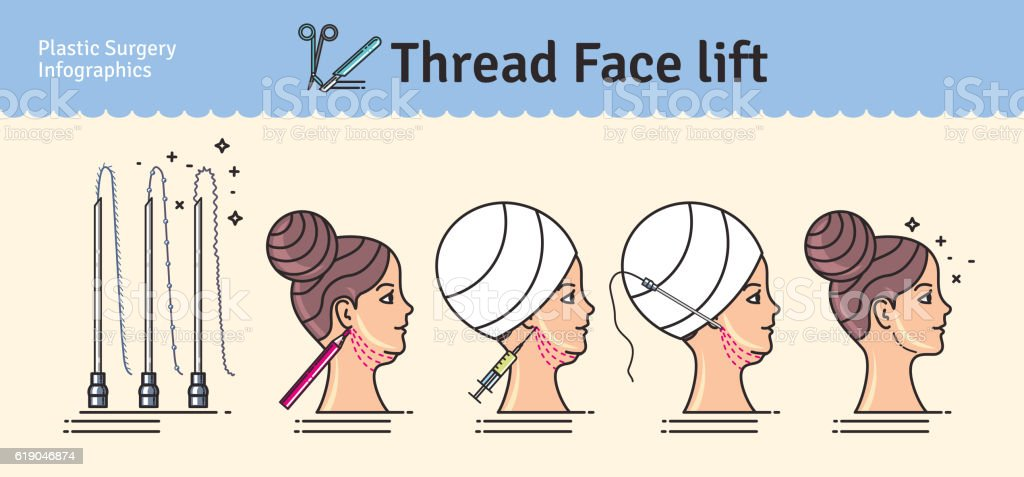 Vector Illustrated set with face lifting surgery by threads vector art illustration