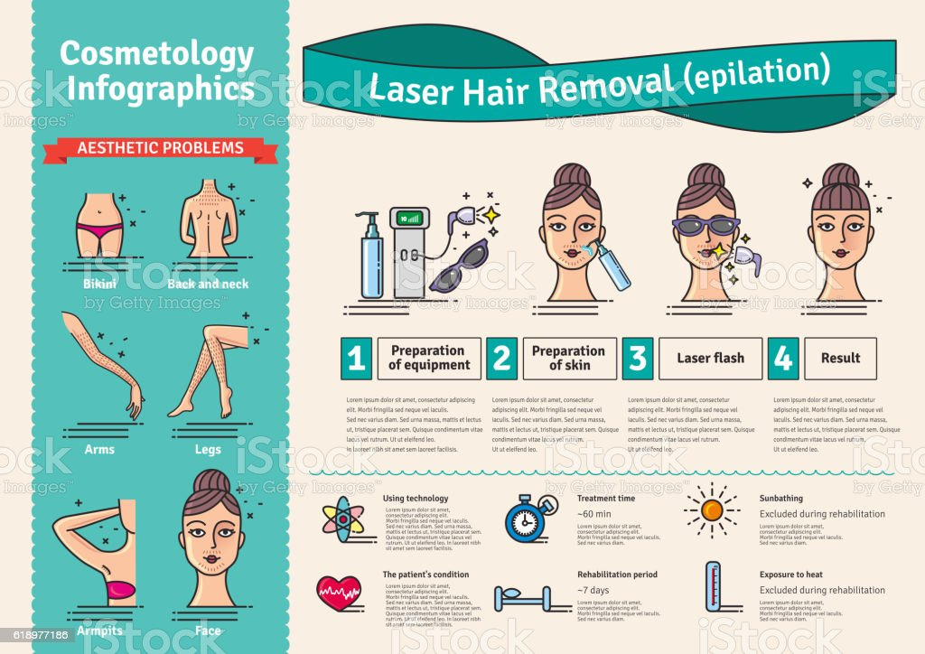 Vector Illustrated set with salon Laser hair removal向量藝術插圖