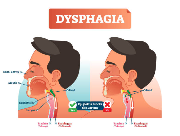 Vector illustration about dysphagia and compered it in scheme. Close-up human with nasal cavity, mouth, tongue, epiglottis, larynx, food, trachea and esophagus. Vector illustration about dysphagia. Human compered in scheme. Closeup head with nasal cavity, mouth, tongue, trachea to lungs and esophagus to stomach. Explained how epiglottis blocks the larynx. respiratory tract stock illustrations