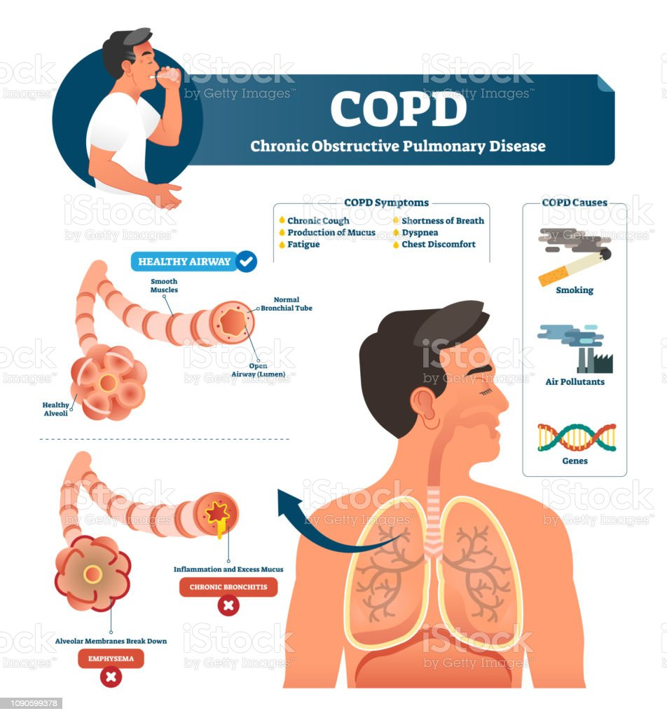 COPD vector illustration. Labeled chronic obstructive pulmonary explanation vector art illustration