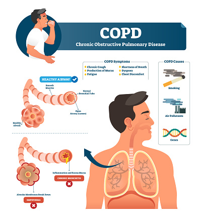Copd Vector Illustration Labeled Chronic Obstructive Pulmonary ...