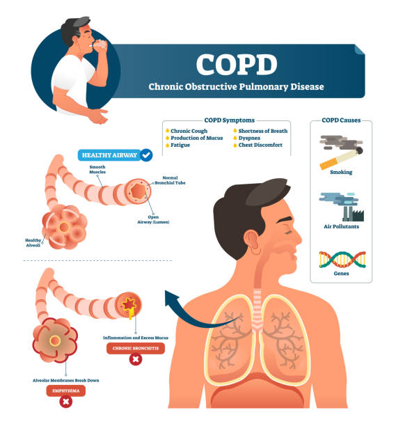 COPD vector illustration. Labeled chronic obstructive pulmonary explanation COPD vector illustration. Labeled chronic obstructive pulmonary disease explanation. Lungs inflammation symptoms and causes diagram. Compared healthy airways and emphysema or bronchitis type sickness. alveolar duct stock illustrations