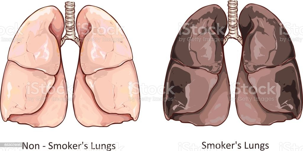 Vector illustration of a Healthy Lung and Smokers Lung vector art illustration