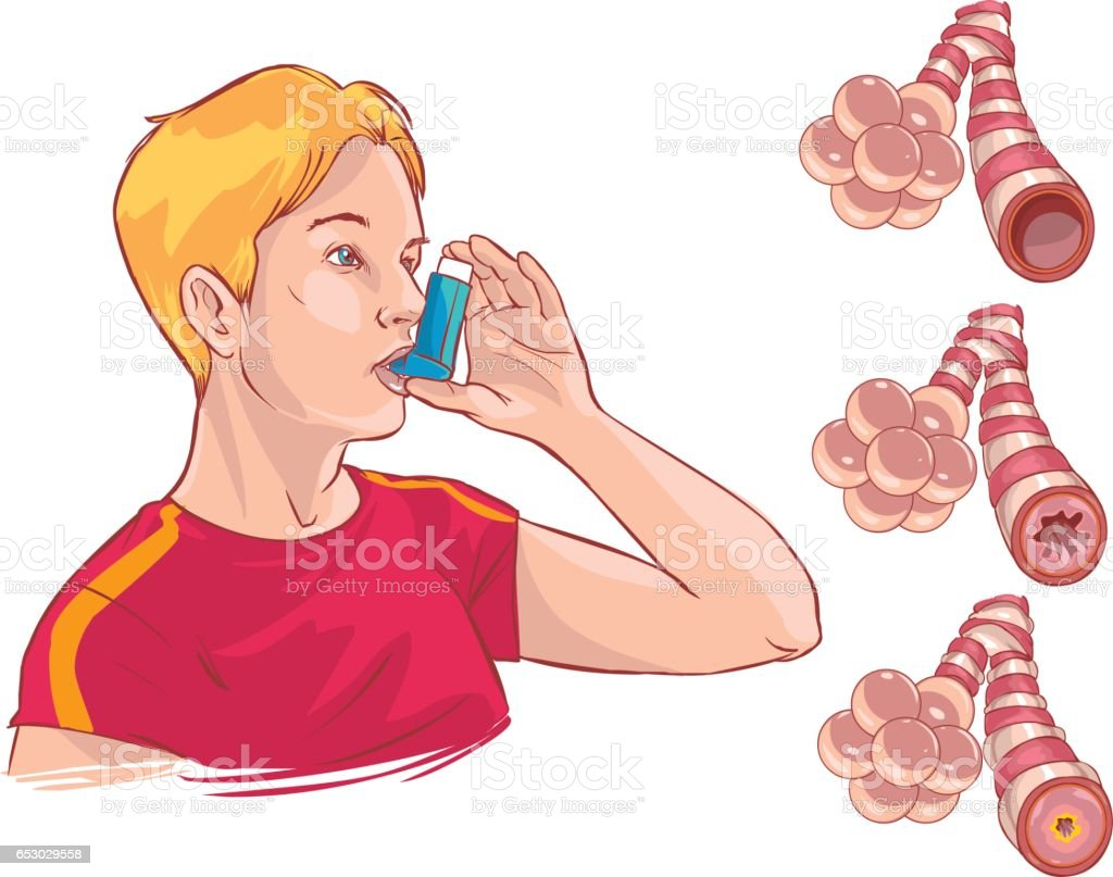 Vector illustration of a  medical anatomy of asthma vector art illustration