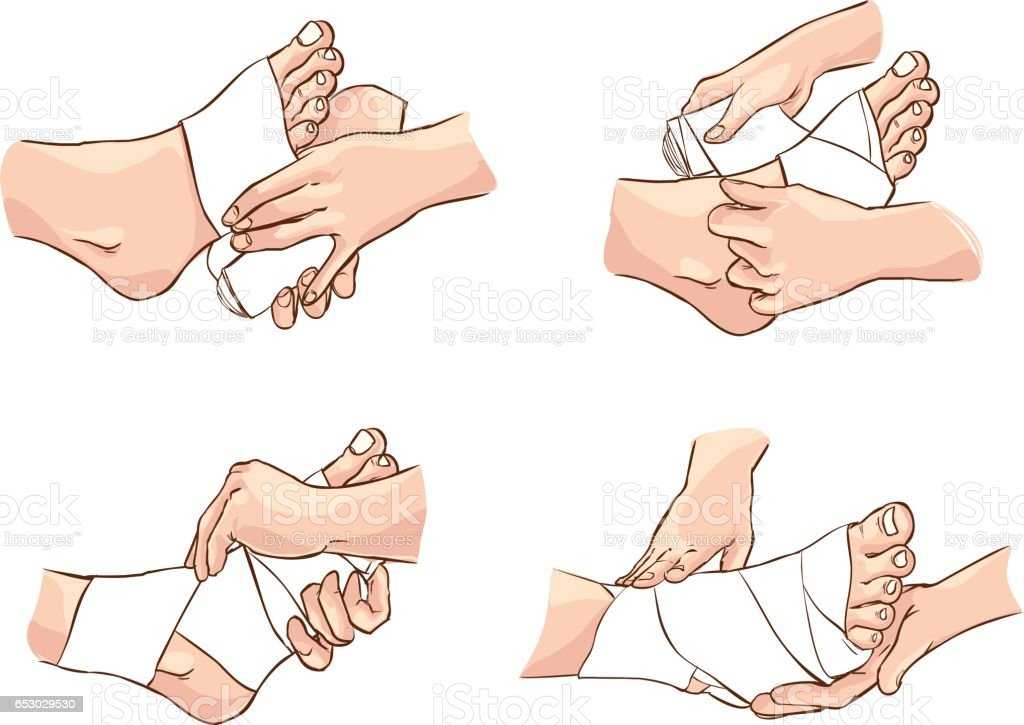 Vector illustration of a  medical foot bandage technique vector art illustration