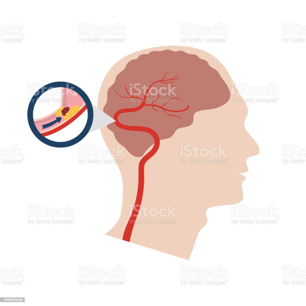 Vector illustration of a stroke vector art illustration