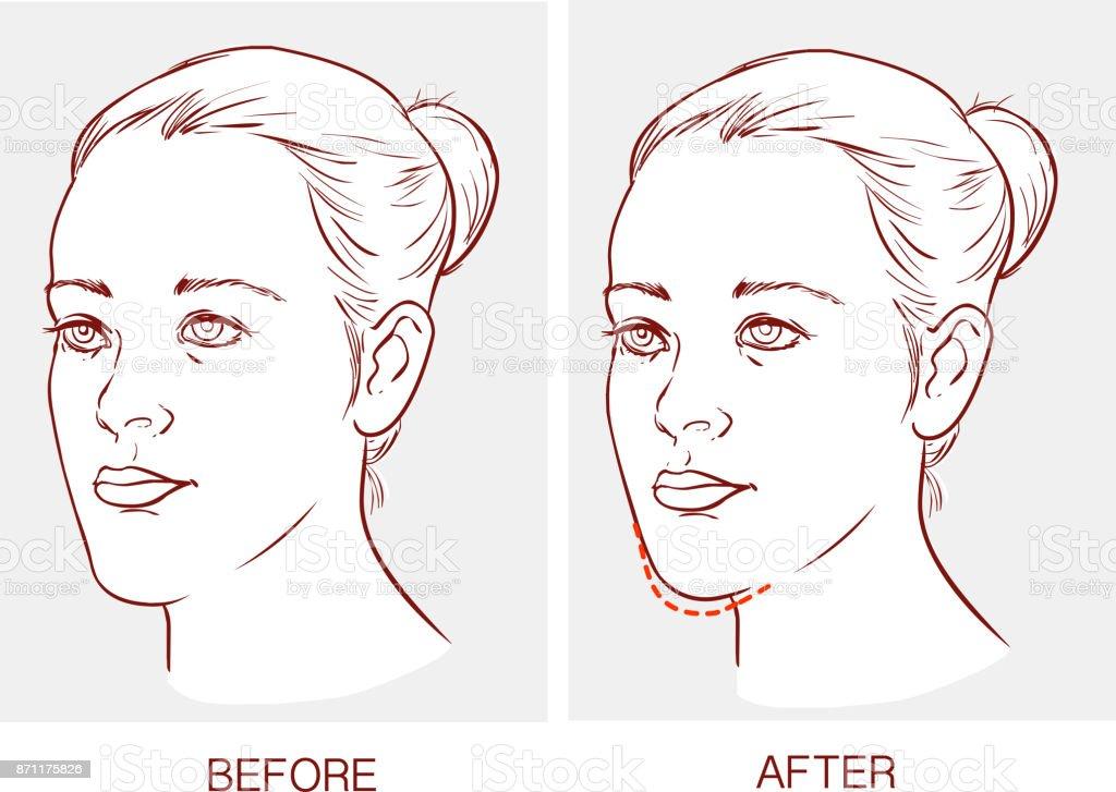 Ilustración de Vector Ilustración De Una Cirugía De Mandíbula ...