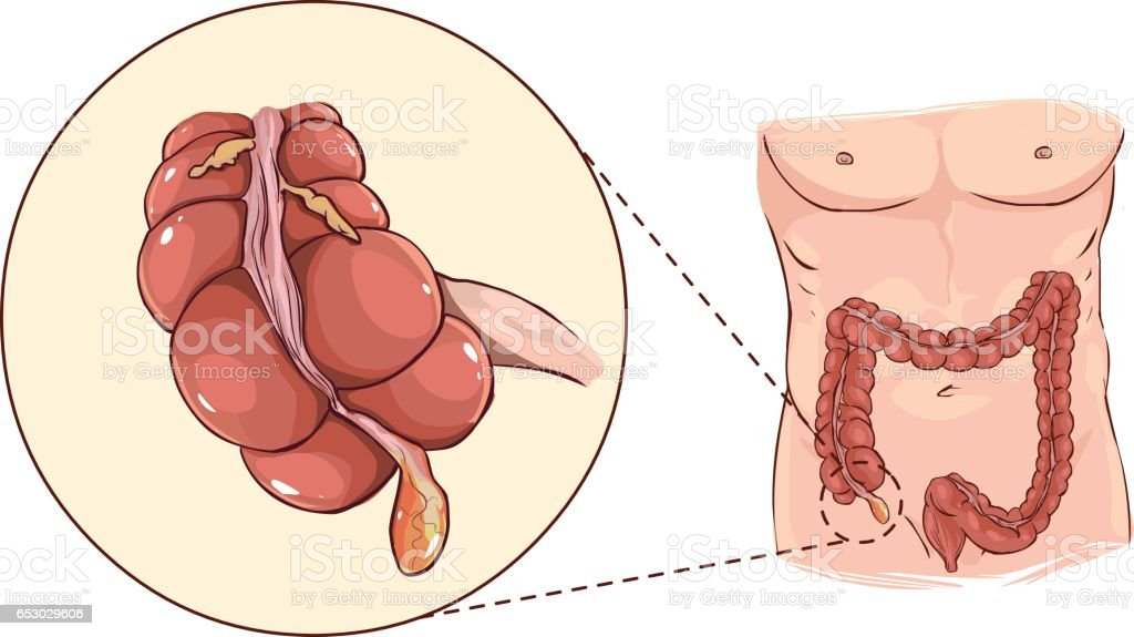 Vector illustration of a with detail of an appendicitis vector art illustration