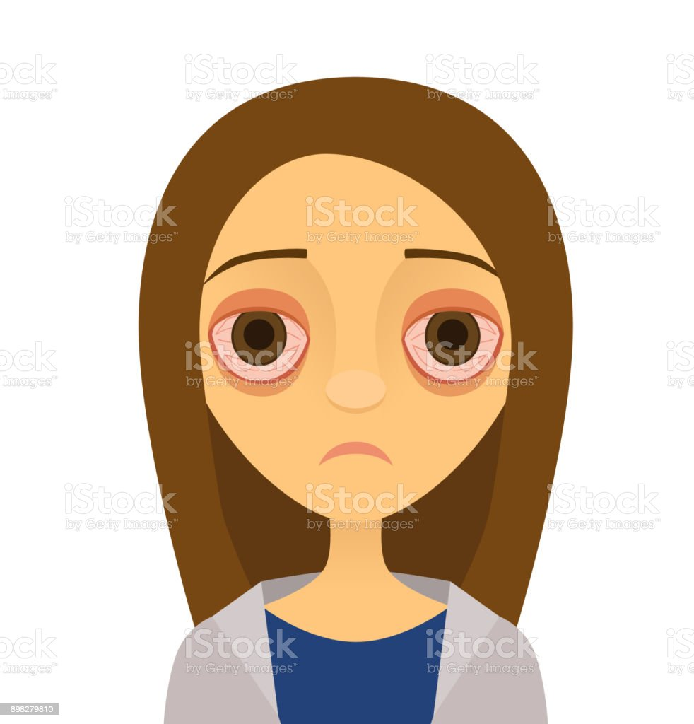 Vector illustration of a young woman with pink eye (conjunctivitis) vector art illustration