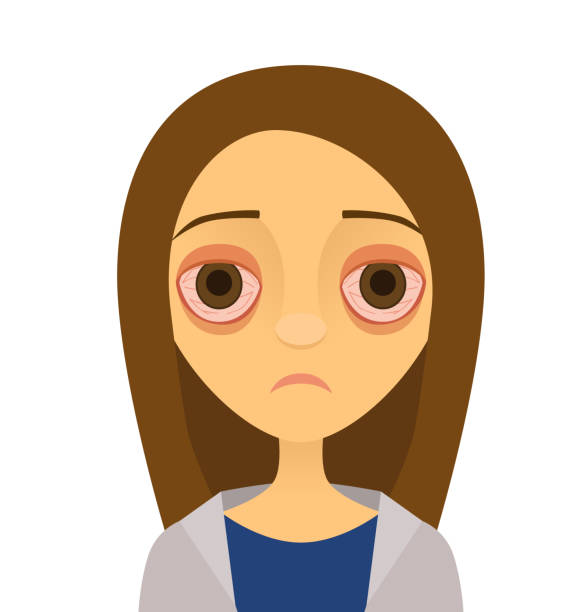 Vector illustration of a young woman with pink eye (conjunctivitis) A vector illustration of a miserable-looking young woman with conjunctivitis in both eyes. tired woman stock illustrations